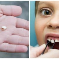 Why Parents should save their Child's Baby Teeth