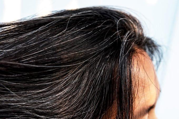 13 Weird Health Symptoms - grey hair