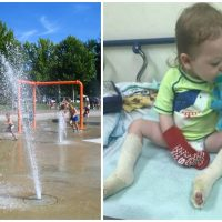 A Little Boy's Feet Melted Playing At a Splash Pad