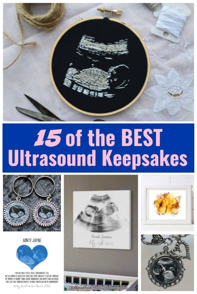 The BEST Ultrasound Keepsakes