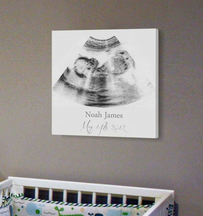 Sonogram Wall Art