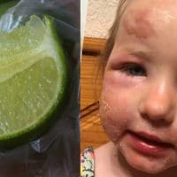 Margarita Burn Is a Thing And It's Absolutely Awful